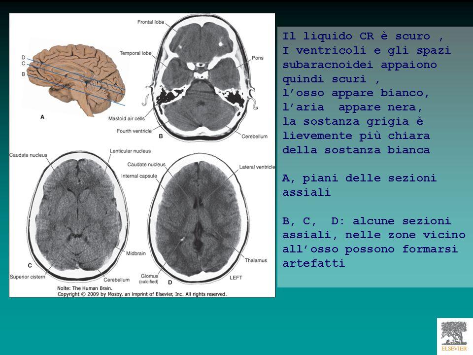 Il liquido CR è scuro , I ventricoli e gli spazi subaracnoidei appaiono quindi scuri , l'osso appare bianco, l'aria appare nera,