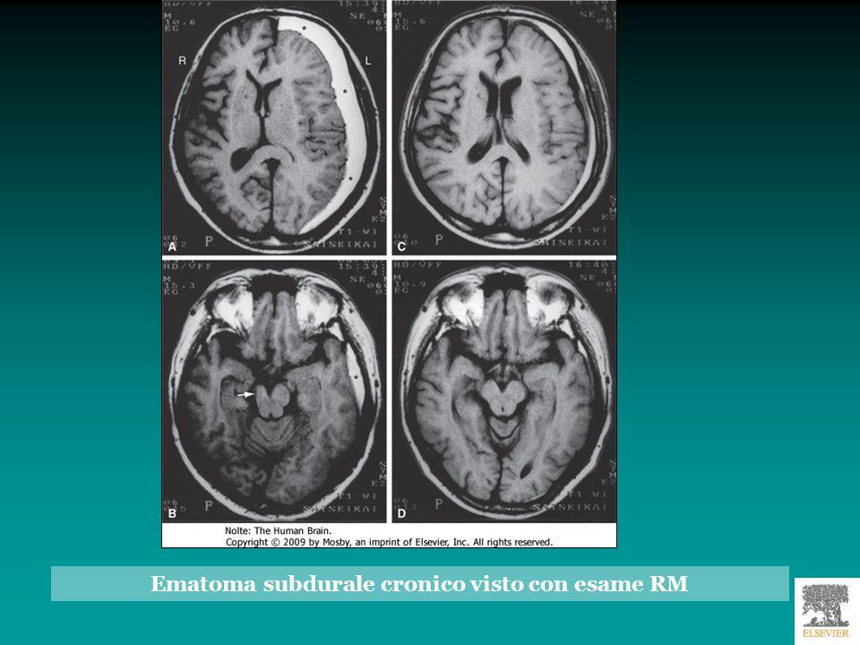 Ematoma subdurale cronico visto con esame RM