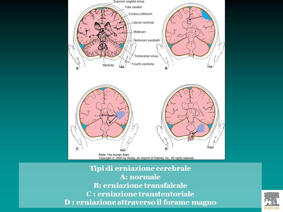 Tipi di erniazione cerebrale A: normale B: erniazione transfalcale