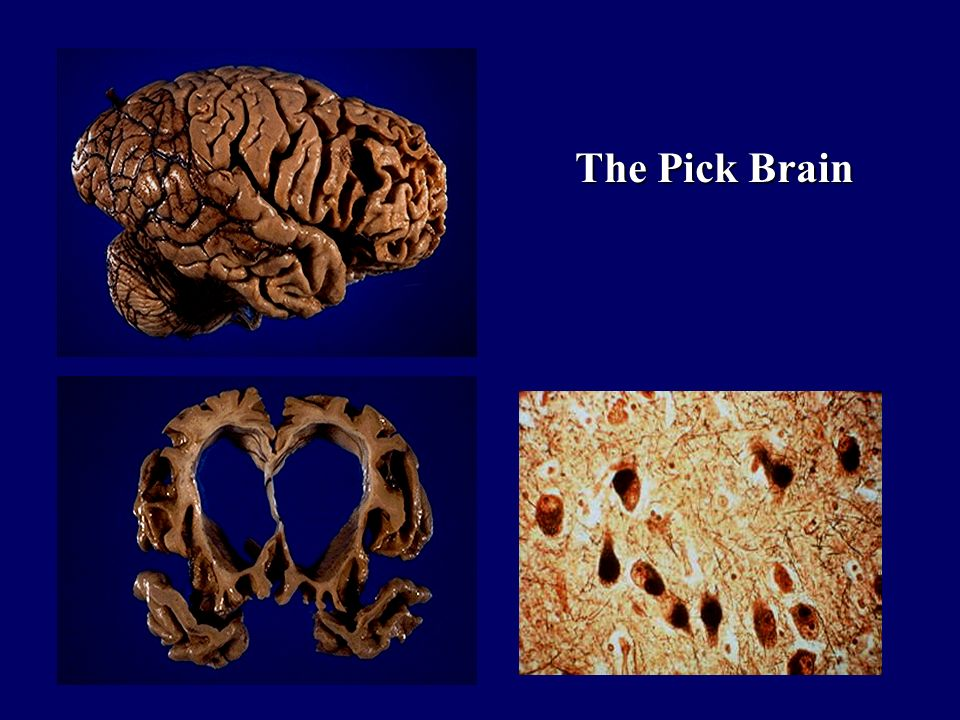 The Pick Brain
