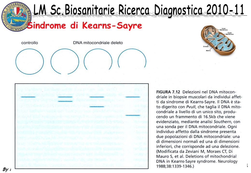 Sindrome di Kearns-Sayre