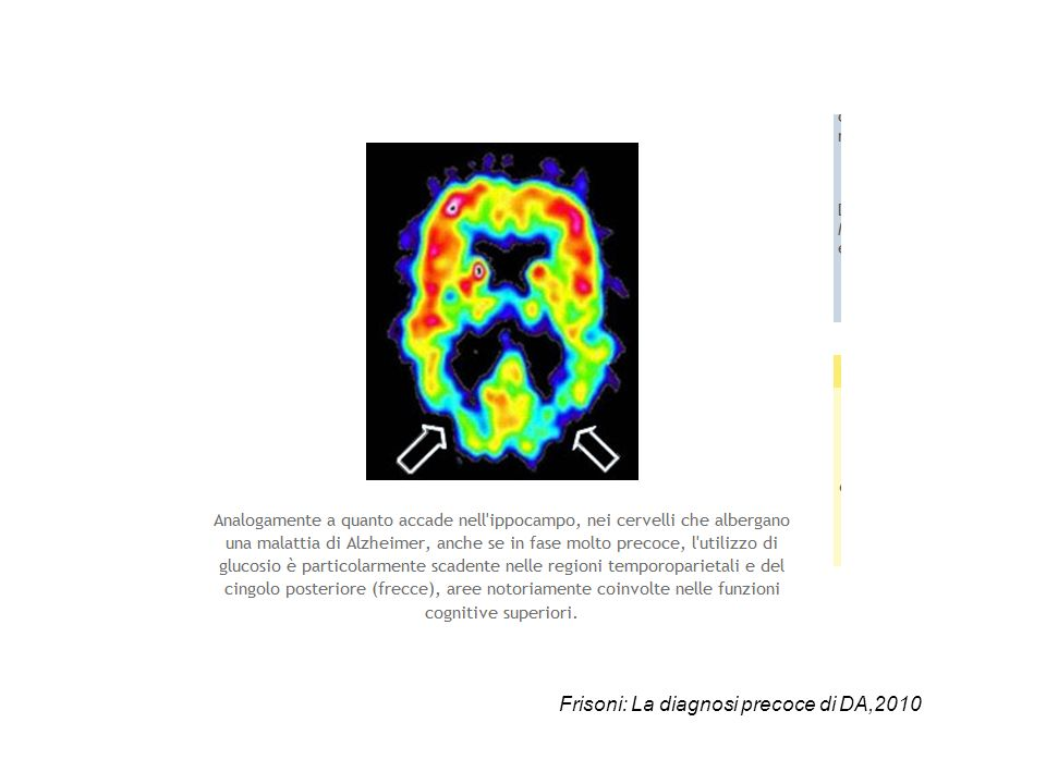 Frisoni: La diagnosi precoce di DA,2010