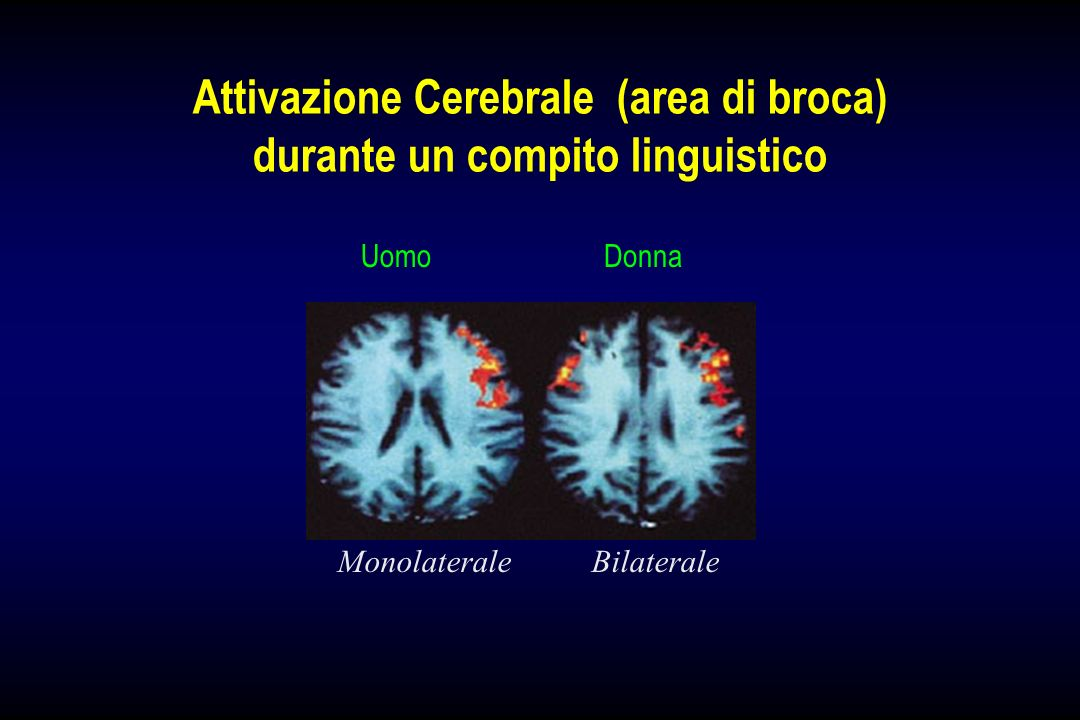 Attivazione Cerebrale (area di broca) durante un compito linguistico