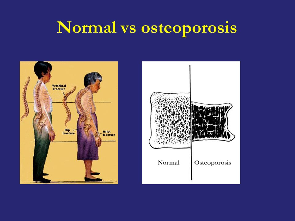 Normal vs osteoporosis