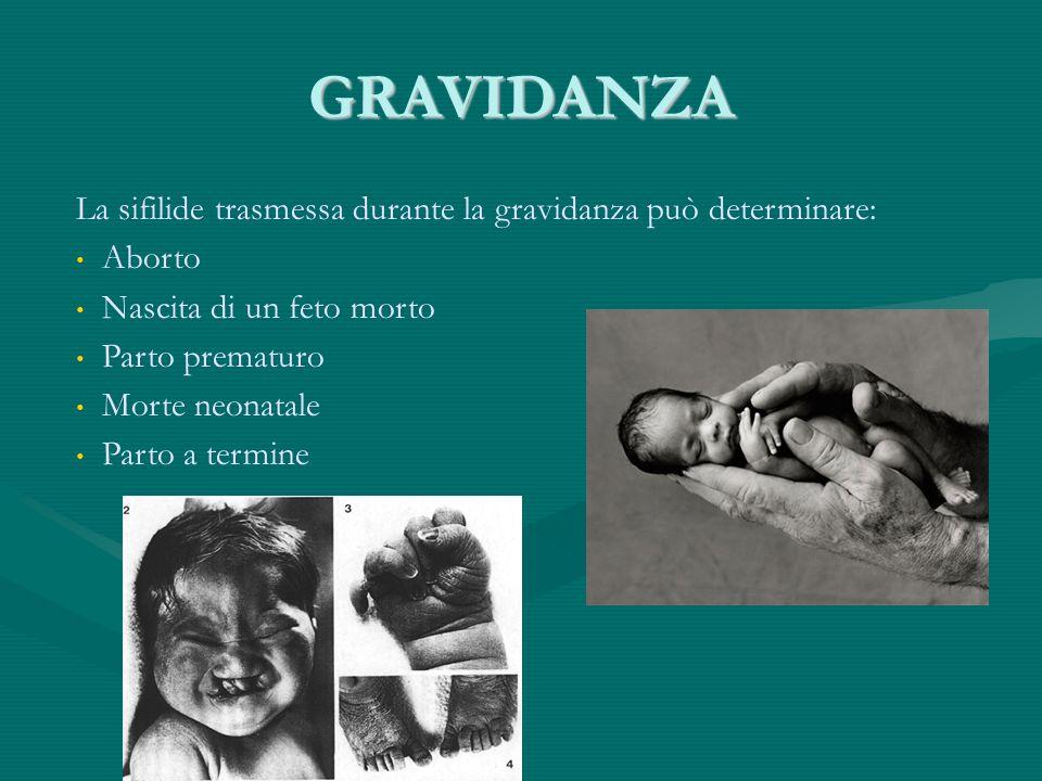 GRAVIDANZA La sifilide trasmessa durante la gravidanza può determinare: Aborto. Nascita di un feto morto.