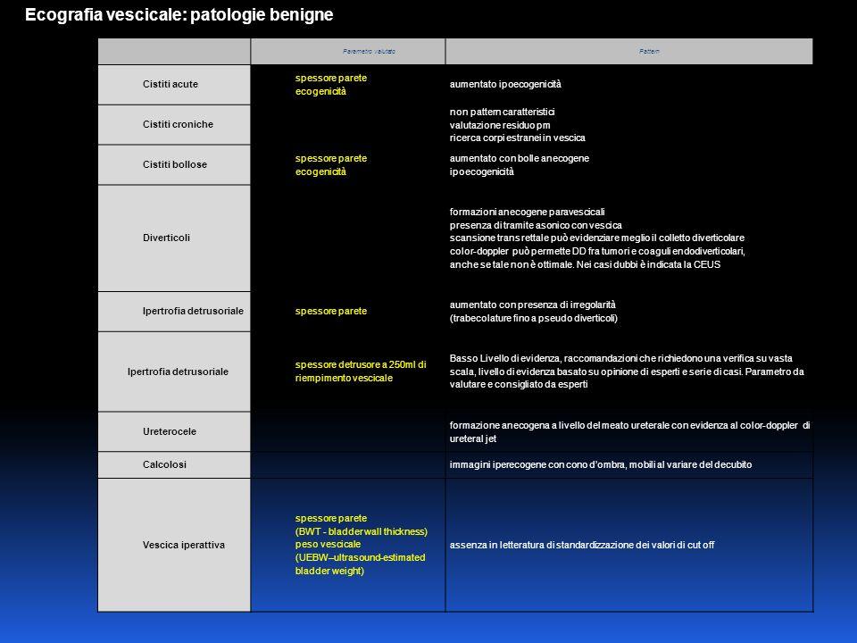 Ecografia vescicale: patologie benigne
