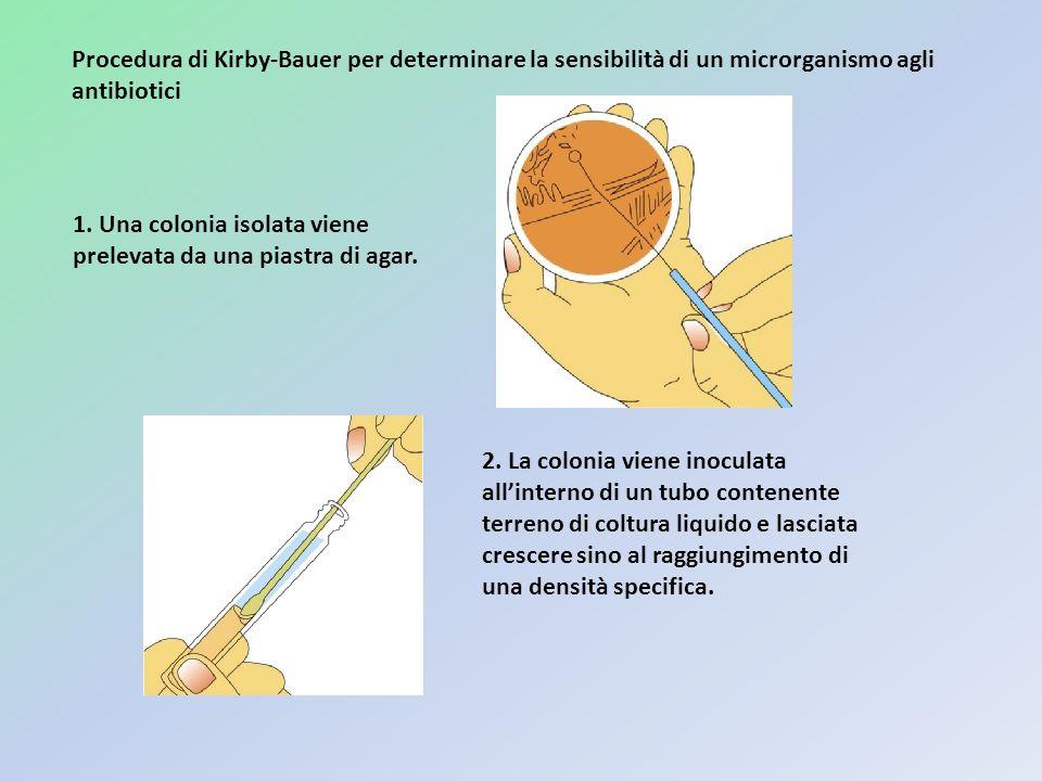 Procedura di Kirby-Bauer per determinare la sensibilità di un microrganismo agli antibiotici