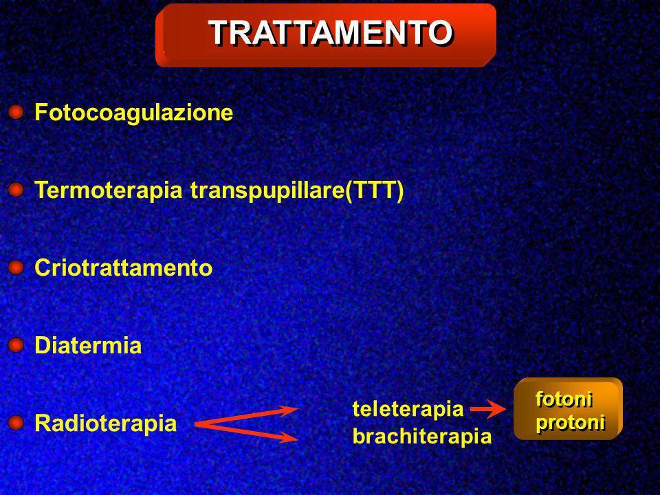TRATTAMENTO Fotocoagulazione Termoterapia transpupillare(TTT)