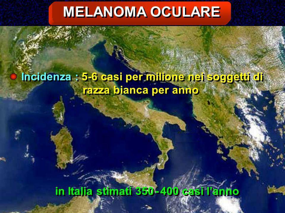 MELANOMA OCULARE Incidenza : 5-6 casi per milione nei soggetti di