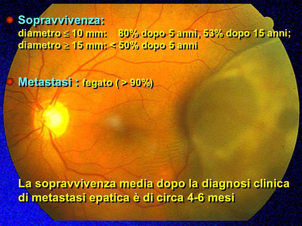 Metastasi : fegato ( > 90%)