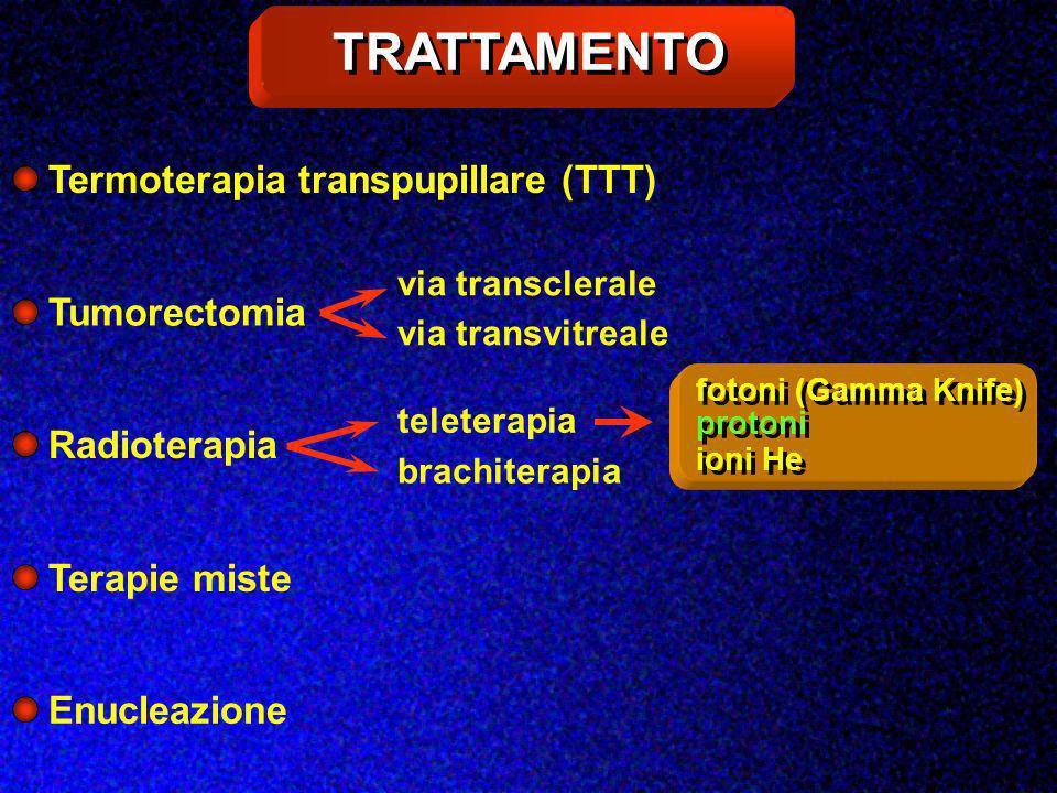 TRATTAMENTO Termoterapia transpupillare (TTT) Tumorectomia