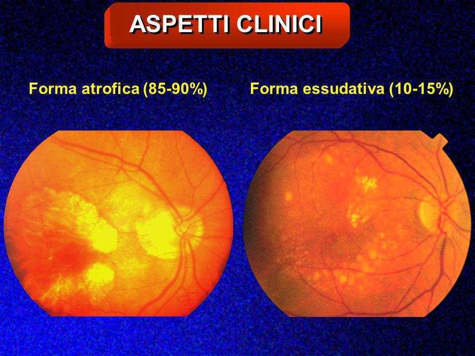 ASPETTI CLINICI Forma atrofica (85-90%) Forma essudativa (10-15%)