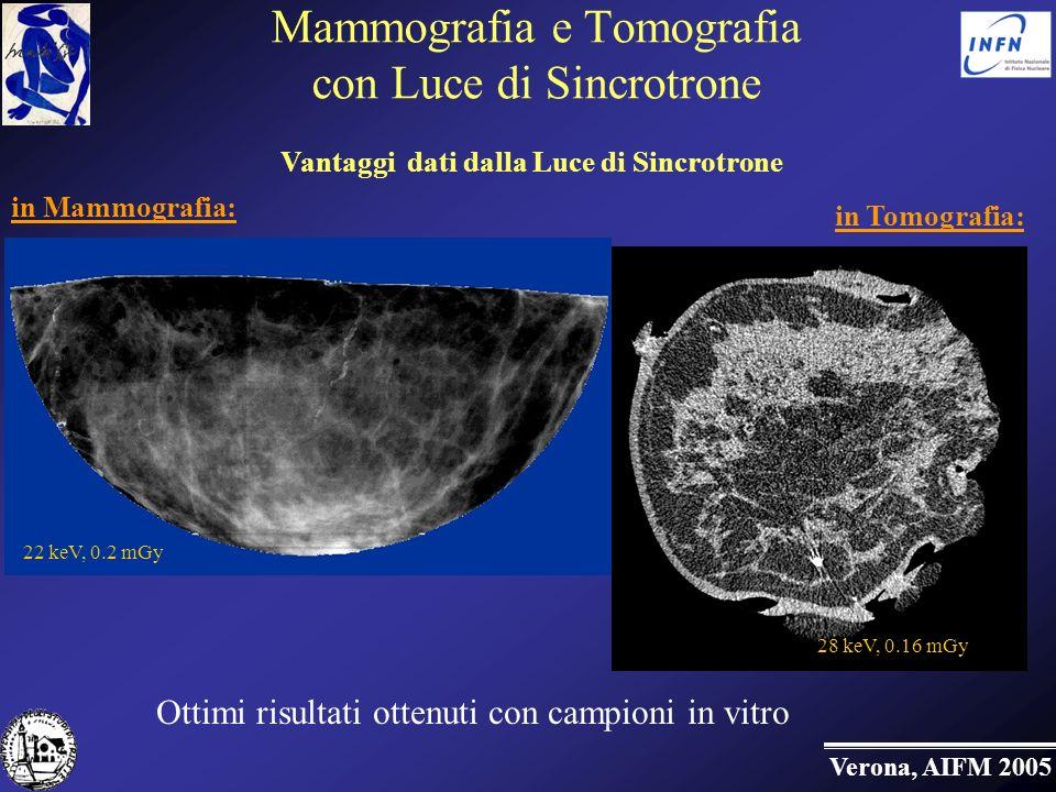 Mammografia e Tomografia con Luce di Sincrotrone