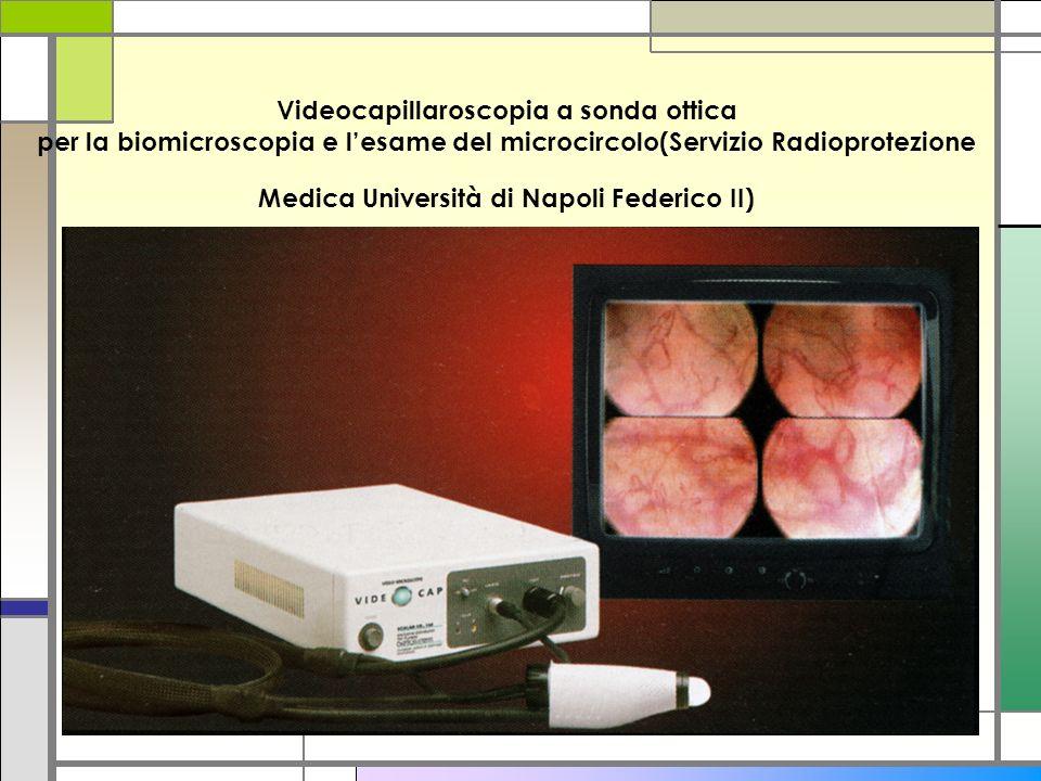 Videocapillaroscopia a sonda ottica per la biomicroscopia e l'esame del microcircolo(Servizio Radioprotezione Medica Università di Napoli Federico II)