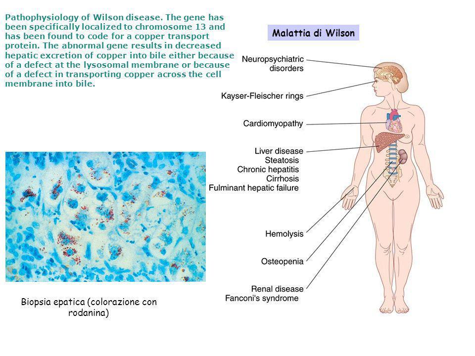 Biopsia epatica (colorazione con