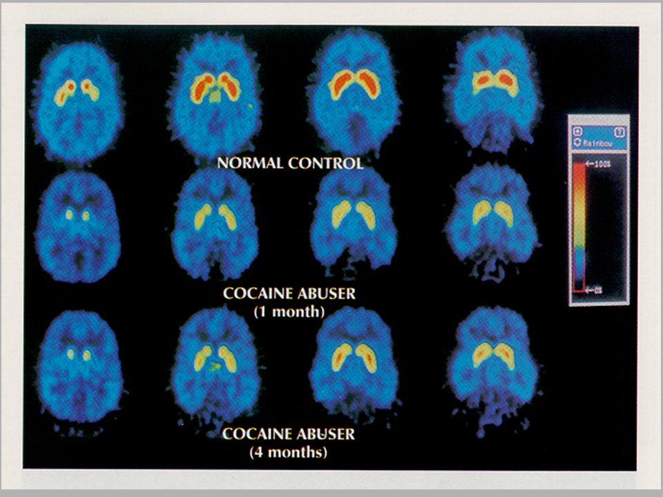 Dr. C. Chiamulera, Presentazione Istituto Marco Polo , 18 Gennaio 2002