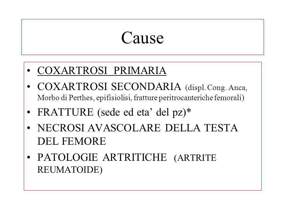 Cause COXARTROSI PRIMARIA