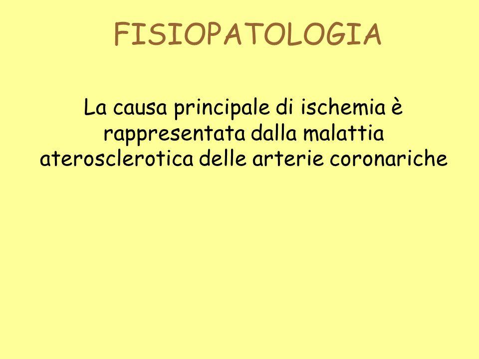 FISIOPATOLOGIA La causa principale di ischemia è rappresentata dalla malattia aterosclerotica delle arterie coronariche.