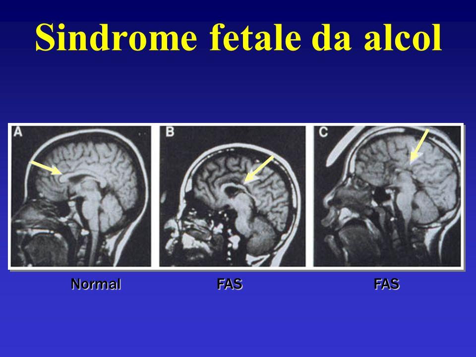 Sindrome fetale da alcol