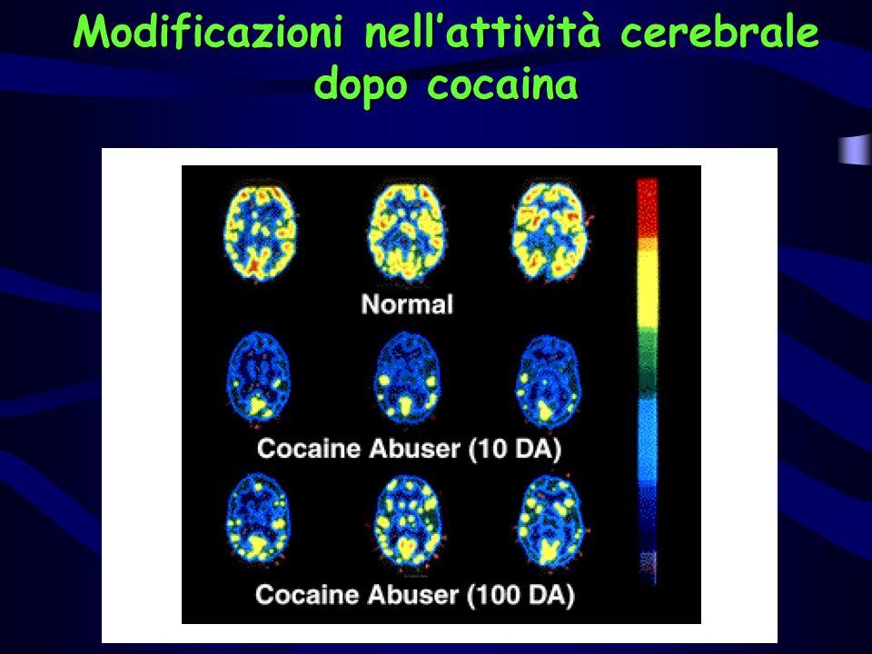 Modificazioni nell'attività cerebrale dopo cocaina