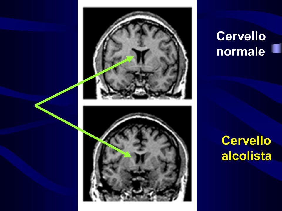 Cervello normale Cervello alcolista