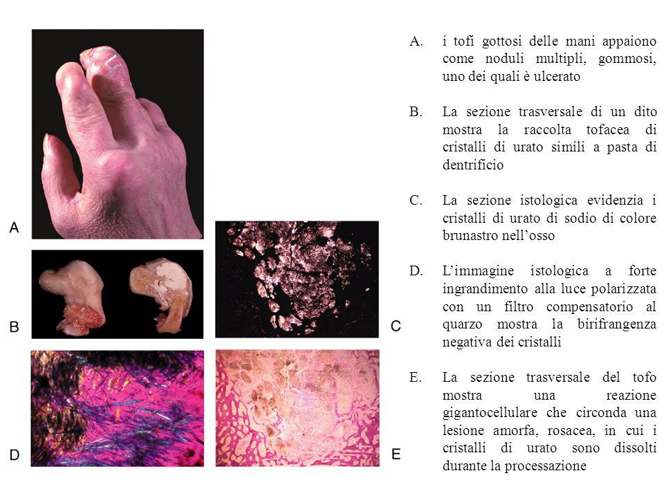i tofi gottosi delle mani appaiono come noduli multipli, gommosi, uno dei quali è ulcerato