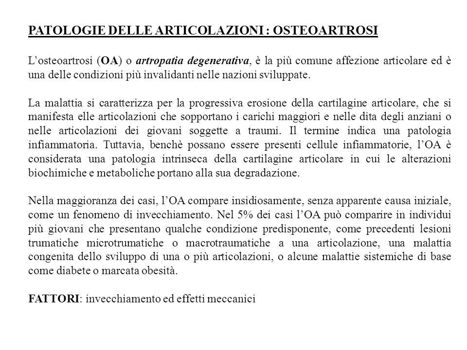 PATOLOGIE DELLE ARTICOLAZIONI : OSTEOARTROSI