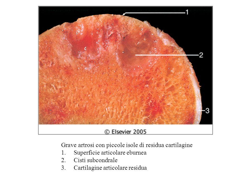 Grave artrosi con piccole isole di residua cartilagine