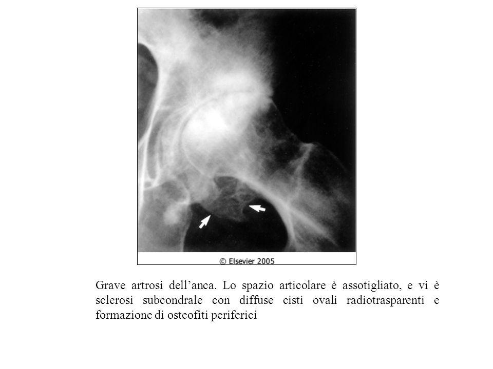Grave artrosi dell'anca