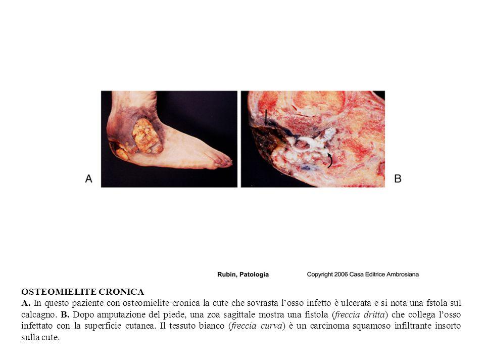 OSTEOMIELITE CRONICA