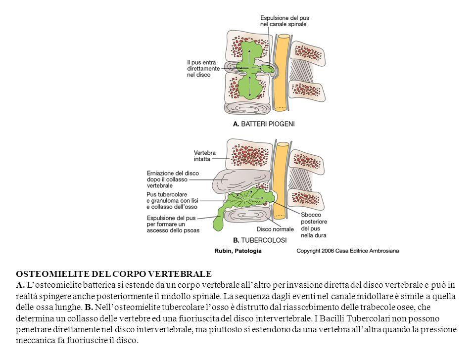 OSTEOMIELITE DEL CORPO VERTEBRALE