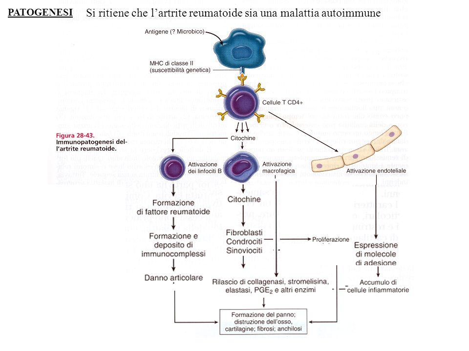 Si ritiene che l'artrite reumatoide sia una malattia autoimmune