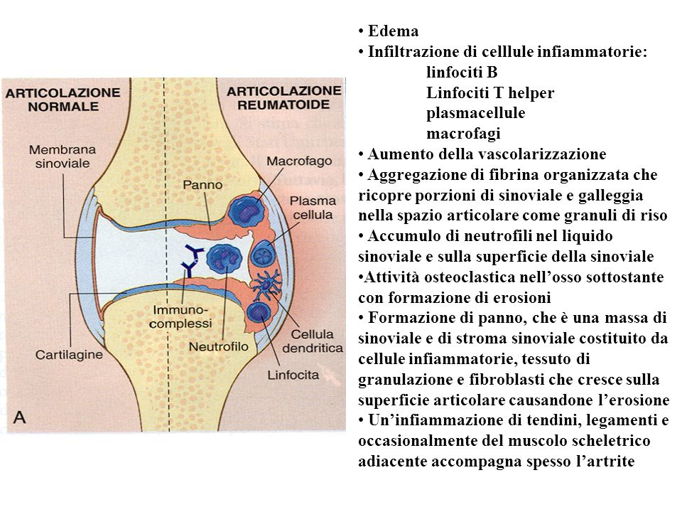 Edema Infiltrazione di celllule infiammatorie: linfociti B. Linfociti T helper. plasmacellule. macrofagi.