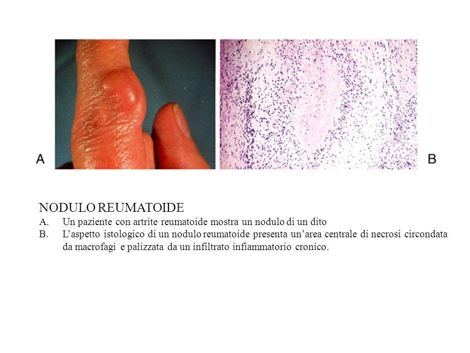 NODULO REUMATOIDE Un paziente con artrite reumatoide mostra un nodulo di un dito.