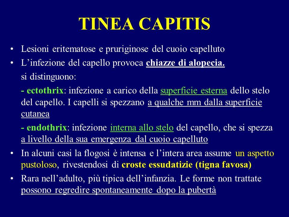 TINEA CAPITIS Lesioni eritematose e pruriginose del cuoio capelluto