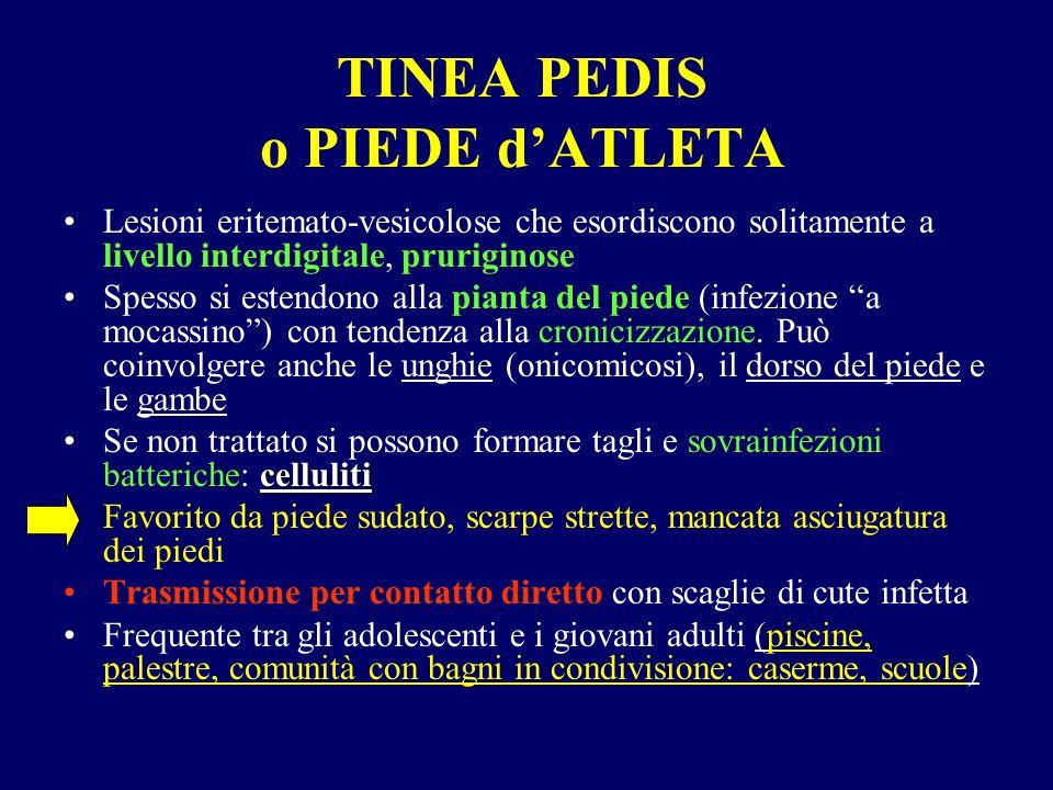 TINEA PEDIS o PIEDE d'ATLETA