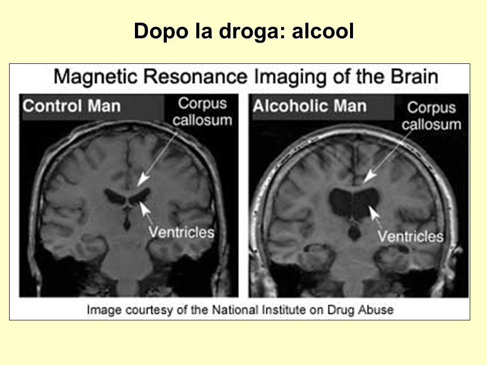 Dopo la droga: alcool