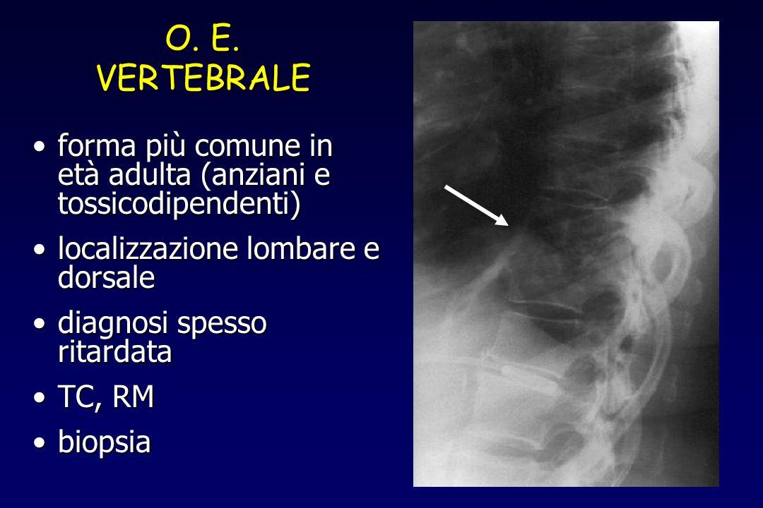 O. E. VERTEBRALE. forma più comune in età adulta (anziani e tossicodipendenti) localizzazione lombare e dorsale.