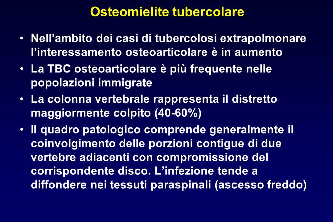 Osteomielite tubercolare