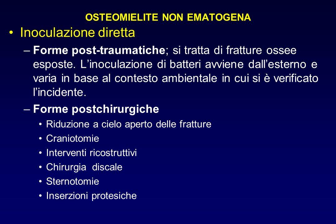 OSTEOMIELITE NON EMATOGENA