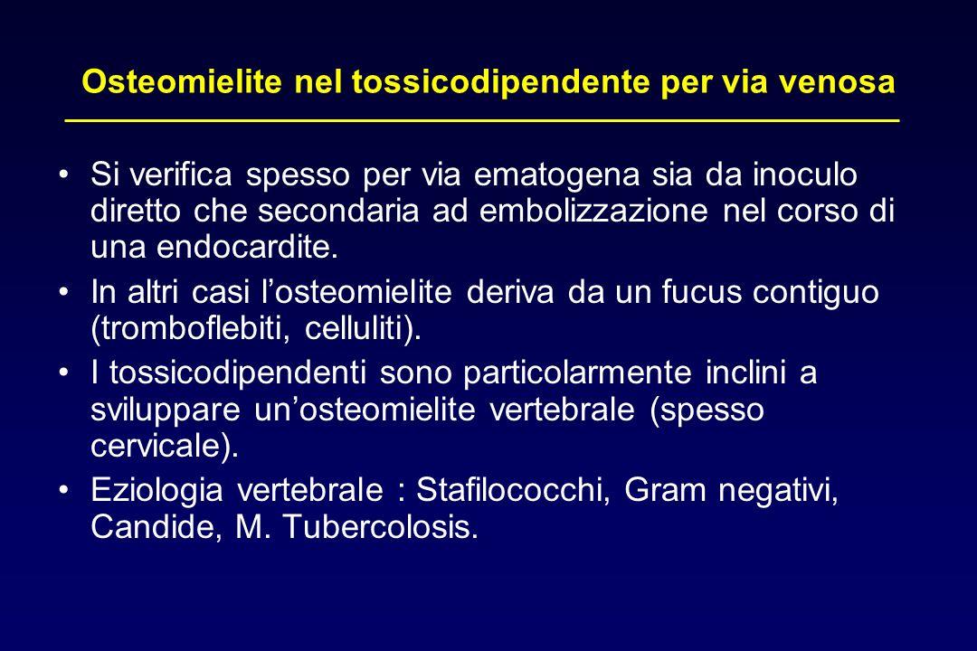 Osteomielite nel tossicodipendente per via venosa