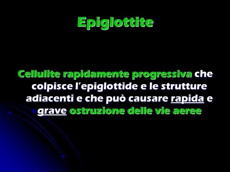 Epiglottite