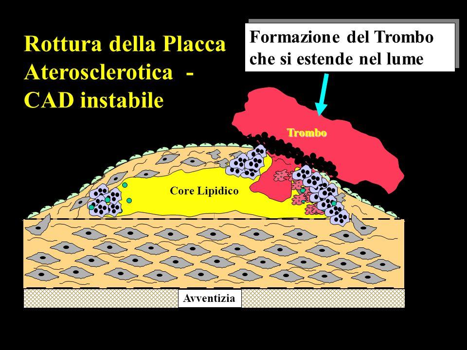 Rottura della Placca Aterosclerotica - CAD instabile