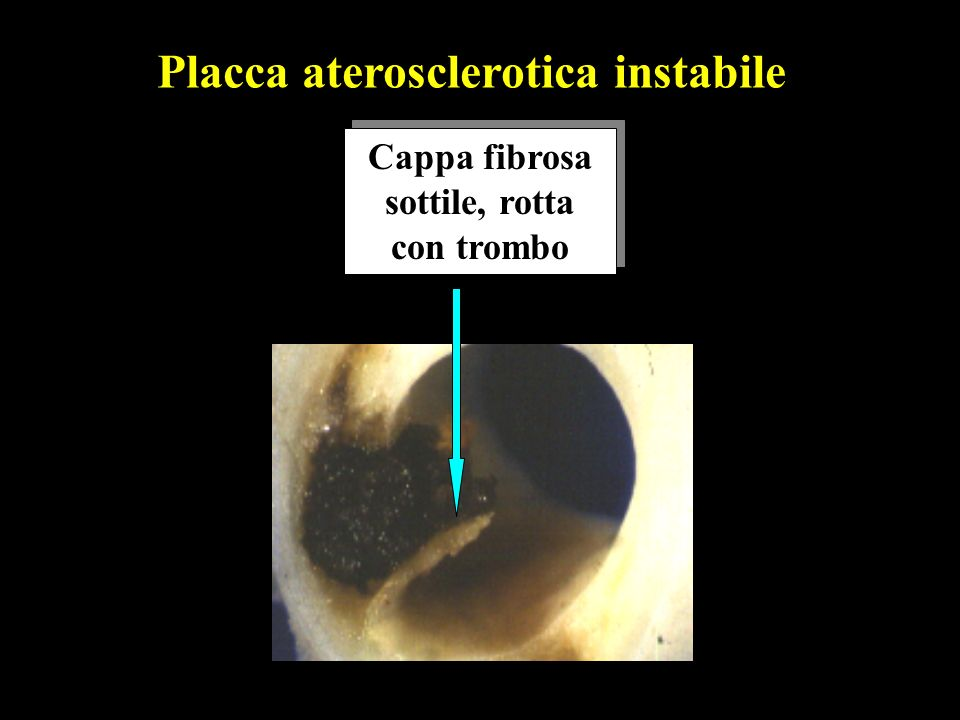 Placca aterosclerotica instabile