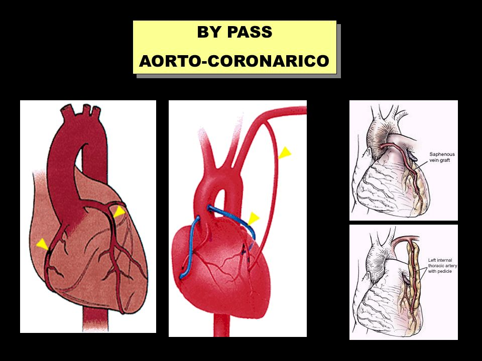 BY PASS AORTO-CORONARICO