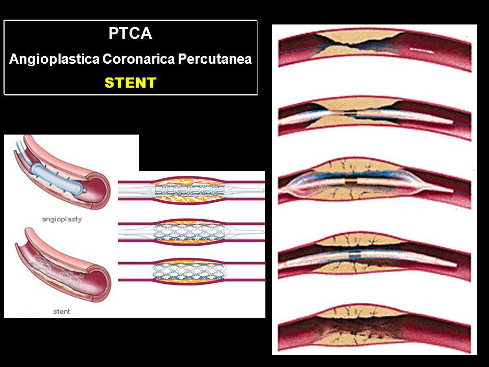 Angioplastica Coronarica Percutanea