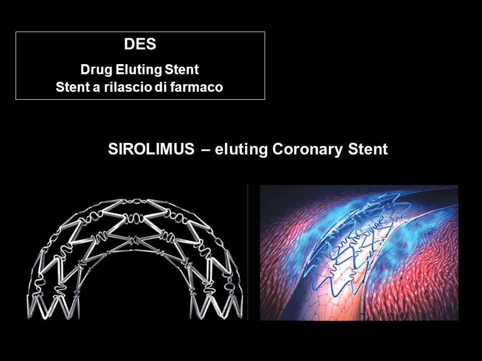 Drug Eluting Stent Stent a rilascio di farmaco