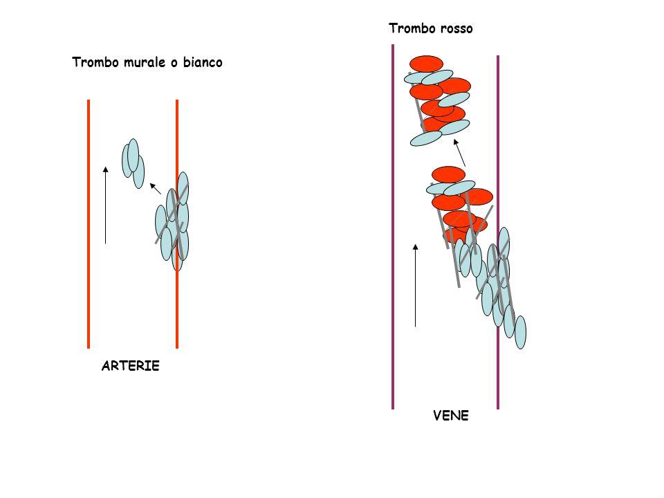 Trombo rosso VENE Trombo murale o bianco ARTERIE