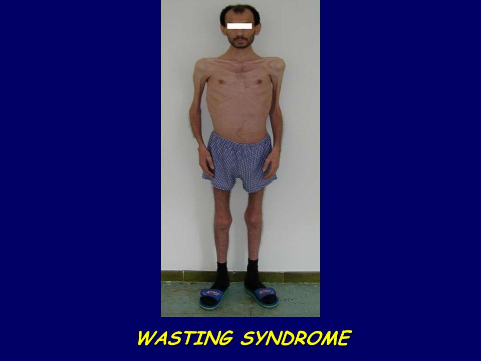 WASTING SYNDROME