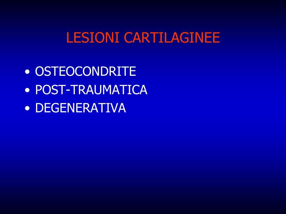 LESIONI CARTILAGINEE OSTEOCONDRITE POST-TRAUMATICA DEGENERATIVA